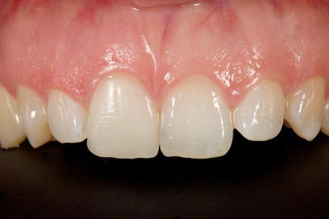 Estética dental diente con carilla