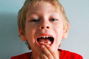 Saliéndole dientes nuevo