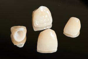 Coronas porcelana