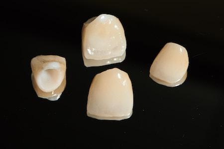 Corona de porcelana
