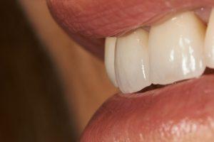 Rehabilitación coronas porcelana