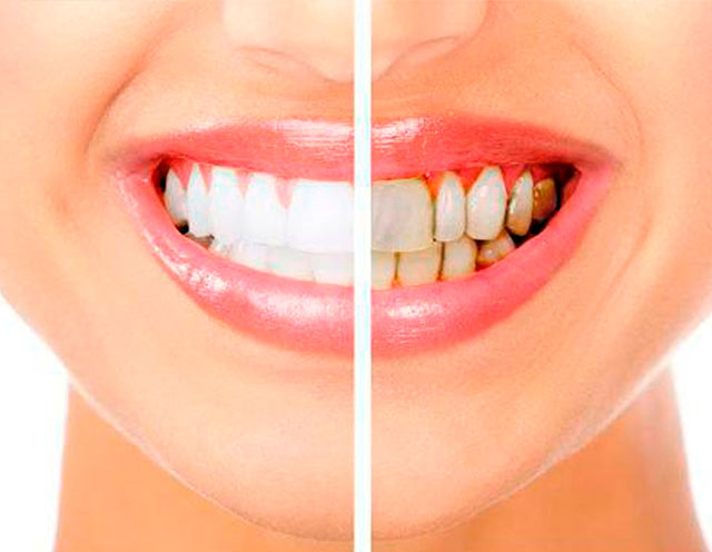 periodoncia-tenerife