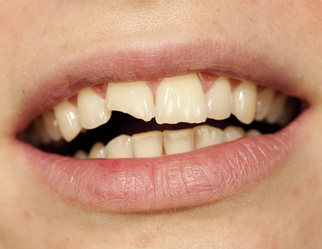 diente-roto-niño
