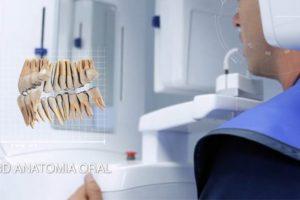 planificacion-implantes